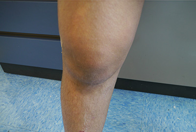 Case study knee picture