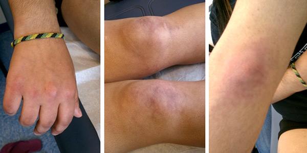 Dermatomyositis Example Pictures