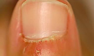 Dermatomyositis on nails example